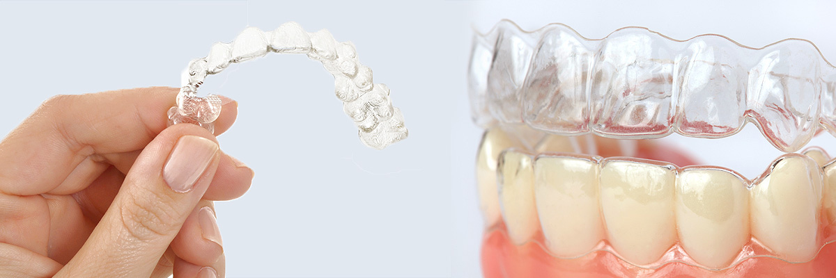 Mason Alternative to Braces for Teens